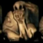 【妊婦の喫煙】妊娠中のお母さんの体内で喫煙に苦しむ赤ちゃんの様子【胎児への影響】